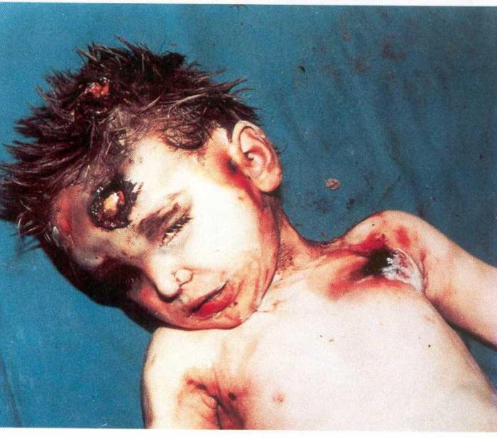 Dete ubijeno.jpg