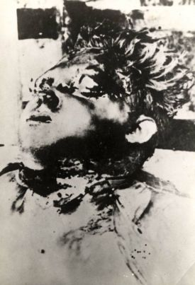 child-mutilated Croatia WW II